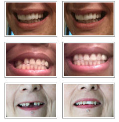 Tooth replacement you make yourself with temptooth material client temporary tooth replace results solutioingenieria Images